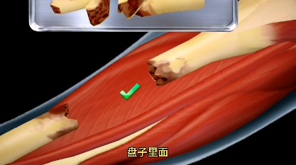 骨折手术模拟器游戏官方手机版图3